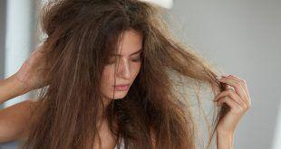 موسم سرما میں بالوں کے مسائل کا حل
