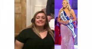 نوجوان لڑکی نے 50 کلو وزن کم کرلیا، دیکھ کر آنکھوں پر یقین نہ آئے