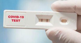 بڑے پیمانے پر تیزرفتار ٹیسٹنگ سے کورونا وبا پر صرف 6 میں قابو پایا جاسکتا ہے، ماہرین